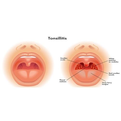 Хронический тонзиллит - исцеляемся с аюрведой